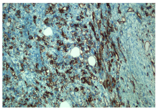 CD34 expression in the angiosarcoma tumor cells