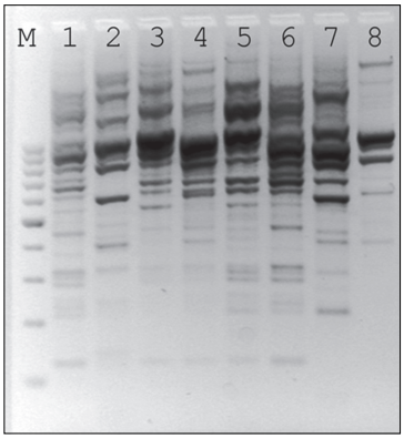 Random amplified polymorphic DNA patterns of first eight isolates indicating the existence of multiple clones of OXA-14 producing Pseudomonas aeruginosa
