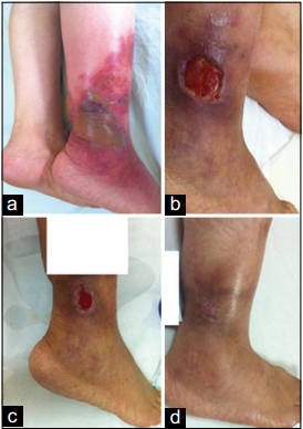 Swelling, erythema and bullae